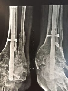 arthrodese arriere pied